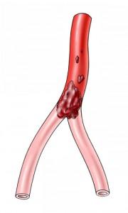 Embolischer Verschluss einer Arterie führt zu plötzlich auftretenden Schmerzen. Umgehungskreisläufe sind meistens noch nicht ausgebildet.