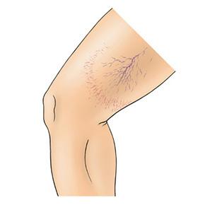 """Eine weitere Komplikation der Verödungstherapie (Sklerosierung, Schaumverödung) sind sogenannte """"Mattings"""", die noch kleinere Form von Besenreisern. Mattings treten- meist aufgrund der Anatomischen Situation – nach einer Verödungstherapie hauptsächlich im Bereich des seitlichen Oberschenkels auf. Durch die Verödungstherapie werden die grösseren Nährvenen der jeweiligen Besenreiser mit dem Verödungsmittel verschlossen. Dadurch werden feinste Äderchen gestaut und treten in Form von Mattings meist radiär auf. Diese können mit weiteren Verödungstherapien angegangen werden, deren Behandlung erfordert aber oft viel Geduld sowohl vom Arzt als auch dem Patienten. Oft verschwinden Mattings aber auch ohne weitere Therapie während Monaten."""