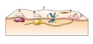 Komplikationen nach minimal invasiven chirurgischen Eingriffen