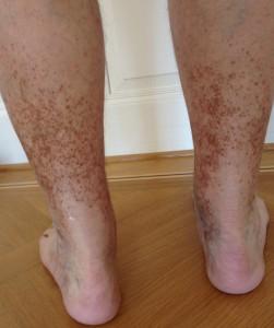Braunverfärbung beider Beine bei langjähriger Blutverdünnung (Marcoumar) infolge Lungenembolie vor vielen Jahren.