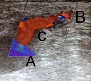 Phlebologisch apparative Abklärung mit der Farbultraschall Untersuchung (FKDS) ergibt eine defekte Stamminsuffizienz der Vena saphena magna. Diese oberflächliche Stammvene verläuft vom Innenknöchel zur Leiste (vgl. Abb2) A) tiefes Beinvenensystem. B) oberflächliche Stammvene (Vena saphena magna) kurz vor der Mündung in das tiefe Beinvenensystem. C) Leiste: Mündung der oberflächlichen Vena saphena magna in das tiefe Beinvenensystem (=Crosse).