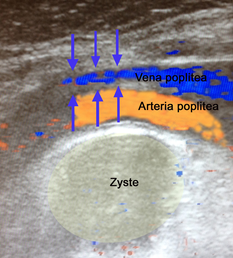 gelb = Baker Zyste in der Kniekehle, orange = Arteria poplitea, blau= Vena poplitea