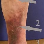 01_abbildung-kramfader-therapie_346px