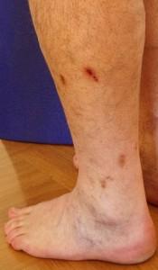 Dunkle Narben nach Verletzung
