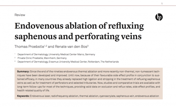 Endovenous ablation of refl uxing saphenous and perforating veins